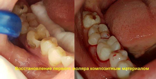 Фото зубов при вантовом шинировании